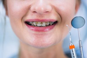 Dental Gold Orto 3