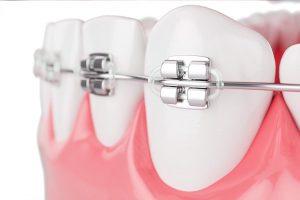 Dental Gold Orto 4